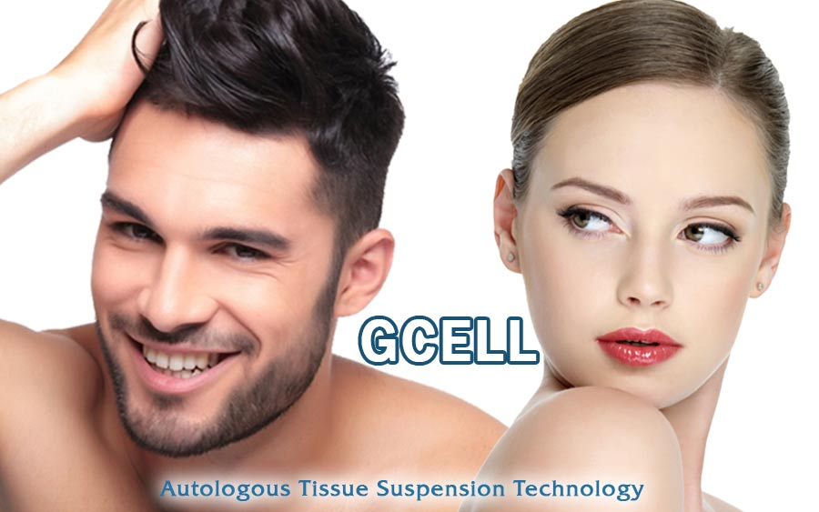 gcell-autologous-tissue-suspension-technology